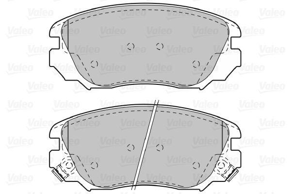 Bremsbelagsatz VALEO 601047 Bewertung