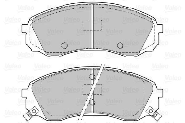 Bremsbelagsatz VALEO 601129 Bewertung